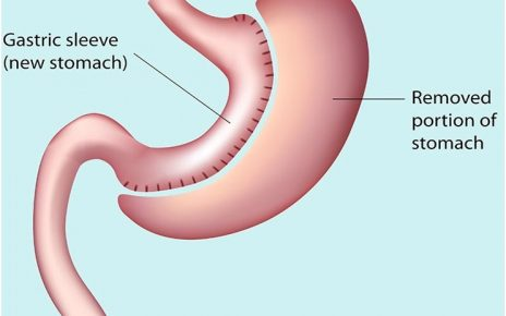 How beneficial is gastric sleeve